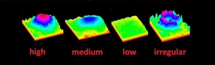 Lutein-meso-zeaxanthin eye supplements_macular pigment profiles